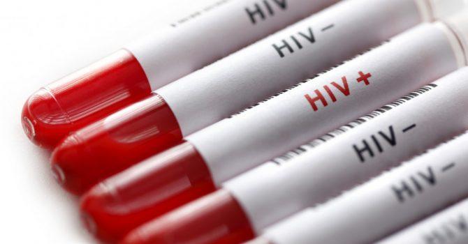Aids Nedir?