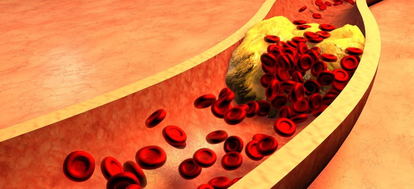 Kolesterol Nedir? Nasıl Düşürülür?