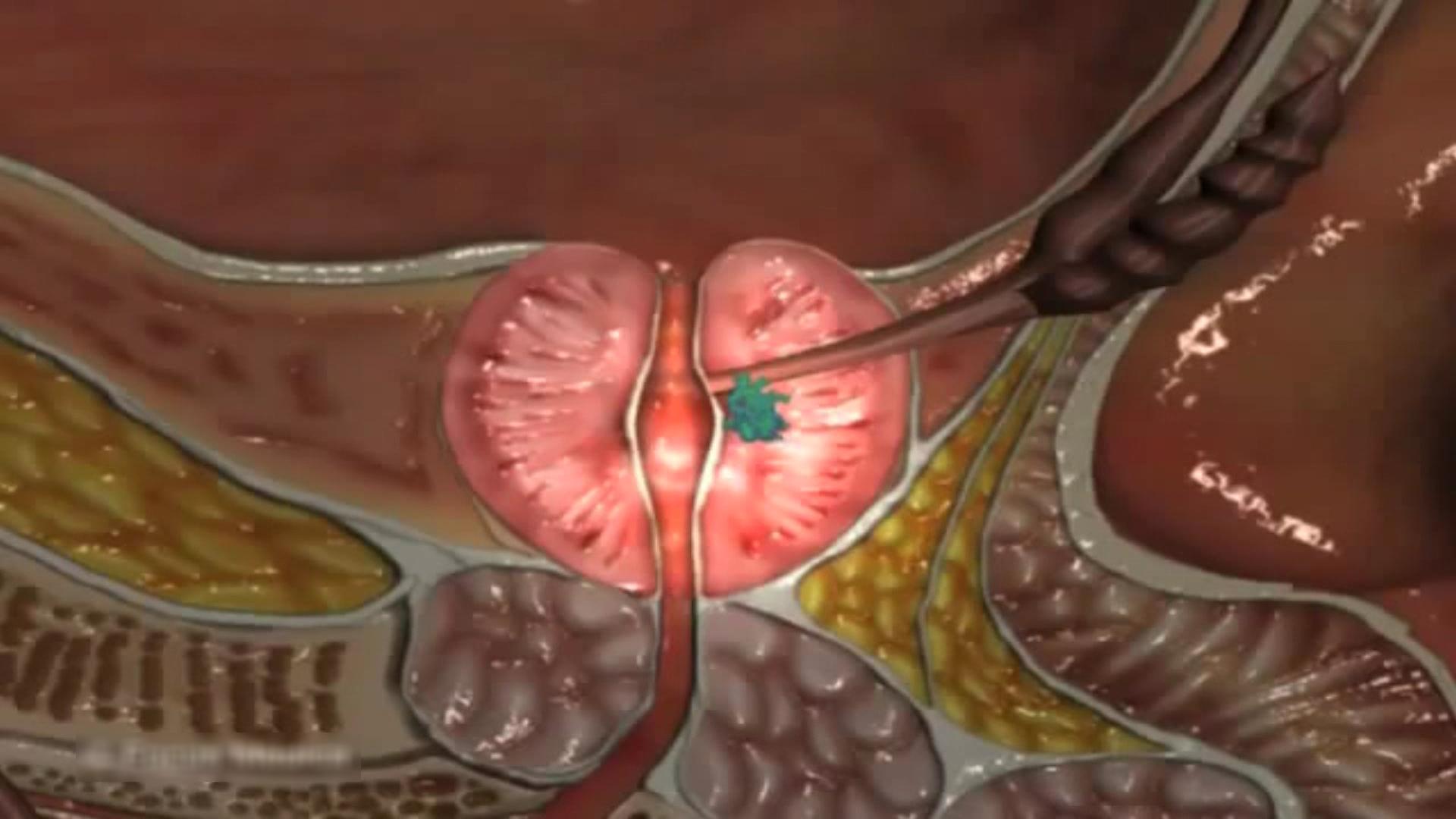 Prostat Kanseri Belirtileri Nelerdir?Teşhisi ve Tedavisi