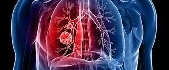 Zatürre -Pnömoni- Hastalığının Belirtileri Nelerdir? Tedavisi Var Mıdır?