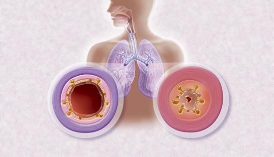 Bronşit Hastalığı Nedir? Belirtileri Nelerdir?